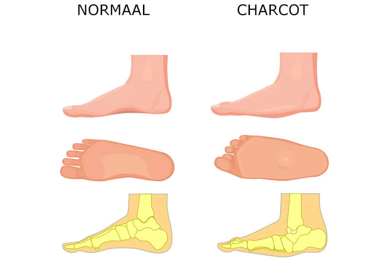 Charcot voet
